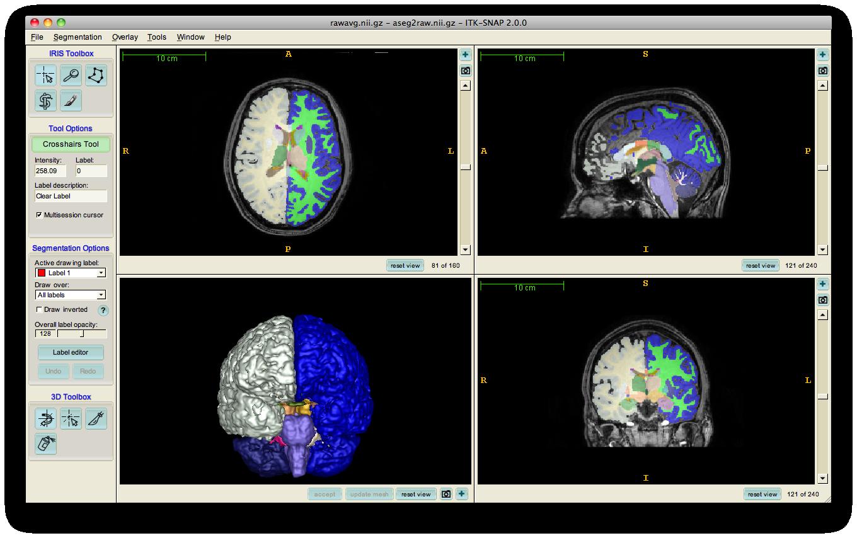 http://brainybehavior.com/neuroimaging/wp-content/uploads/2010/06/rawavg.nii_.gz-aseg2raw.nii_.gz-ITK-SNAP-2.0.0.png